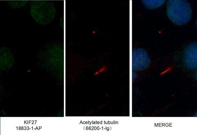 KIF27 Rabbit anti-Canine, Human, Polyclonal, Proteintech 20 μL; Unconjugated Ver productos