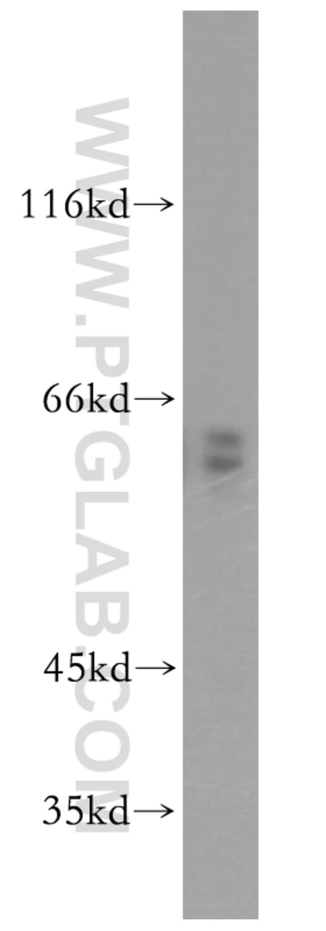 CRMP4 Rabbit anti-Human, Mouse, Rat, Polyclonal, Proteintech 20 μL; Unconjugated Ver productos