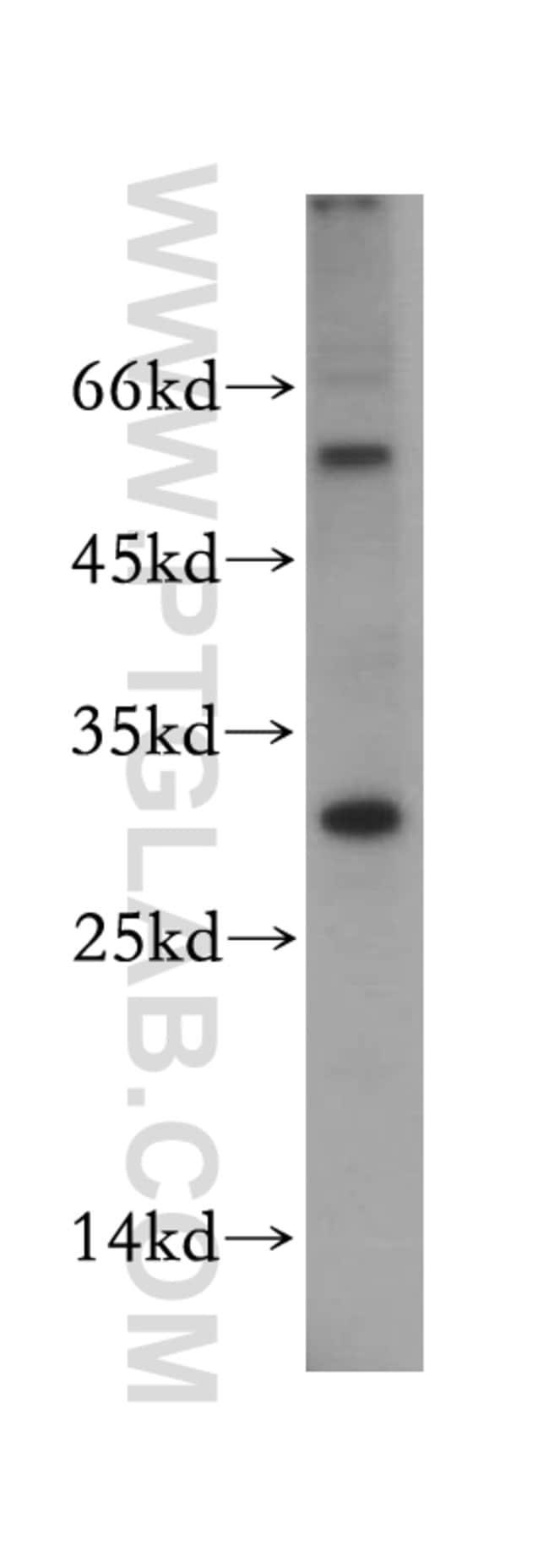 TSPAN13 Rabbit anti-Human, Mouse, Rat, Polyclonal, Proteintech 20 μL; Unconjugated Ver productos