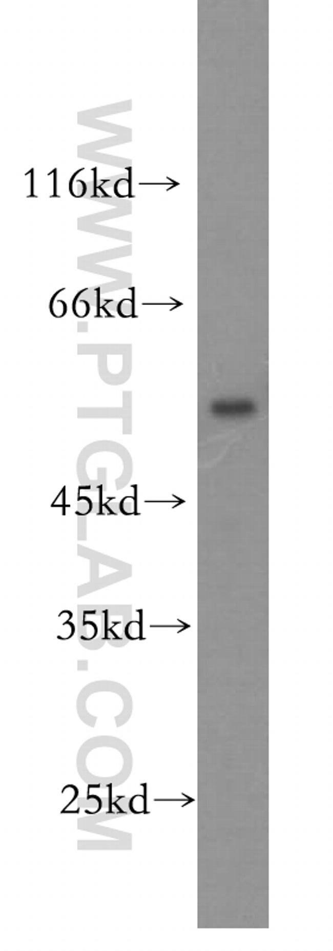OCT2 Rabbit anti-Human, Mouse, Rat, Polyclonal, Proteintech 20 μL; Unconjugated Ver productos