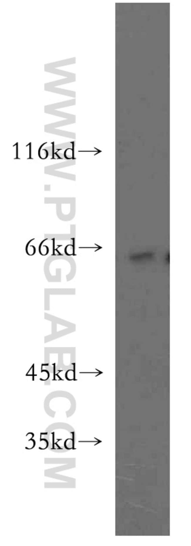 RUFY2 Rabbit anti-Human, Mouse, Rat, Polyclonal, Proteintech 20 μL; Unconjugated Ver productos