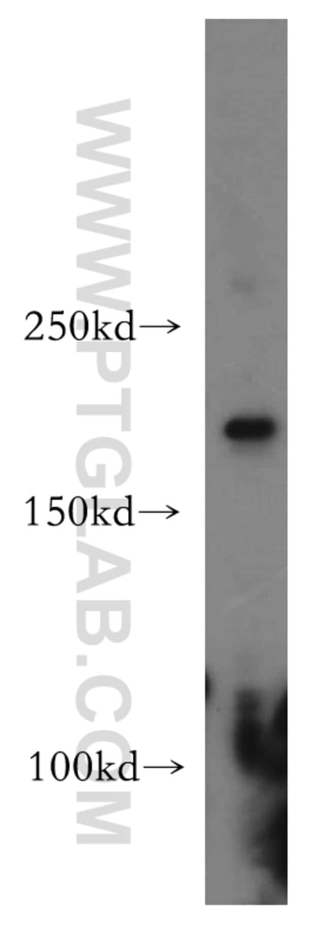 HCFC1 Rabbit anti-Human, Mouse, Rat, Polyclonal, Proteintech 20 μL; Unconjugated Ver productos