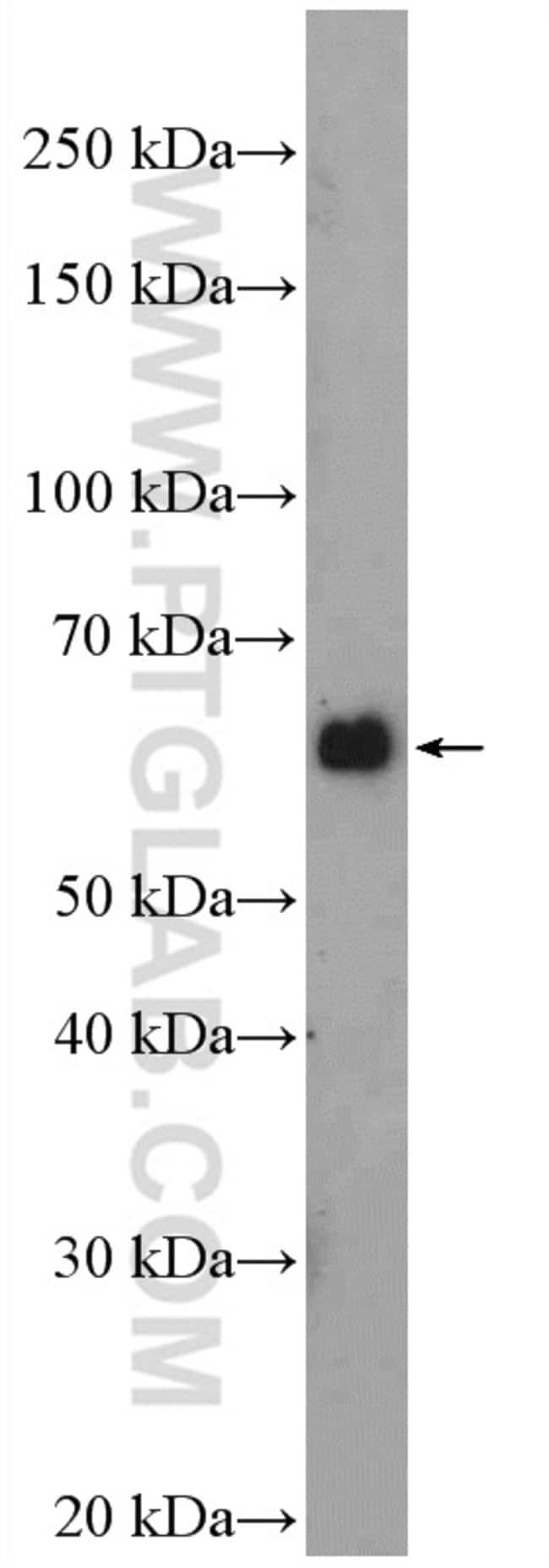 ATG14/Barkor (N-terminal) Rabbit anti-Human, Mouse, Rat, Polyclonal, Proteintech 20 μL; Unconjugated Ver productos