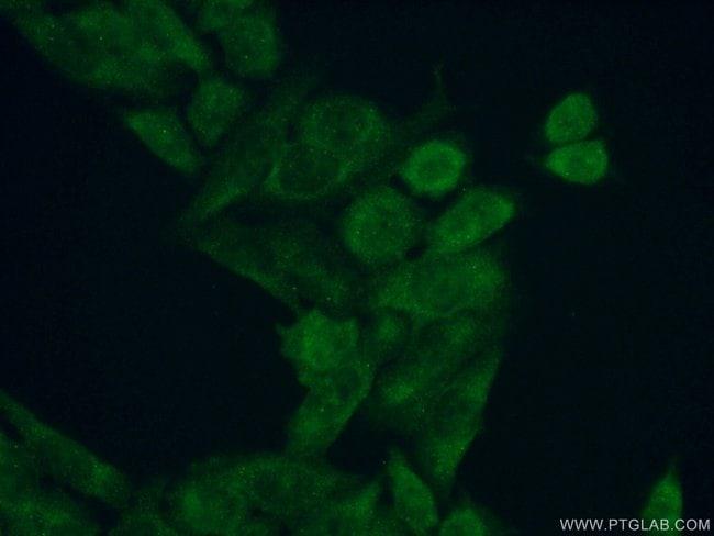 FEM1B Rabbit anti-Human, Mouse, Rat, Polyclonal, Proteintech 20 μL; Unconjugated Ver productos