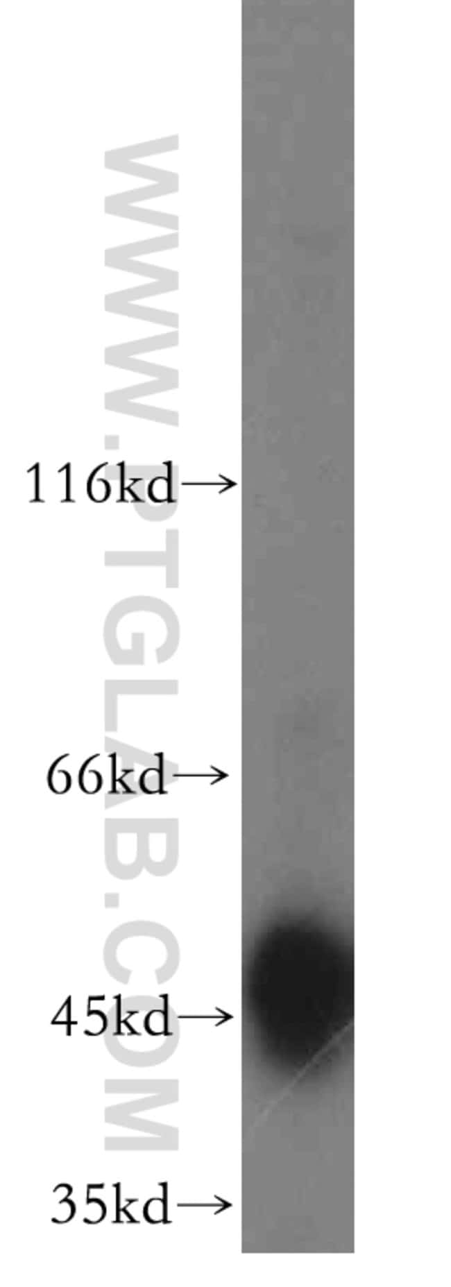 TRIP13 Rabbit anti-Human, Mouse, Rat, Polyclonal, Proteintech 20 μL; Unconjugated Ver productos