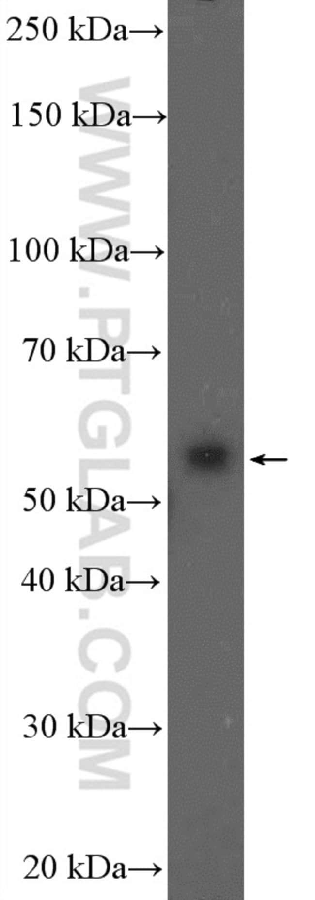 PPP3CC Rabbit anti-Human, Mouse, Polyclonal, Proteintech 20 μL; Unconjugated Ver productos
