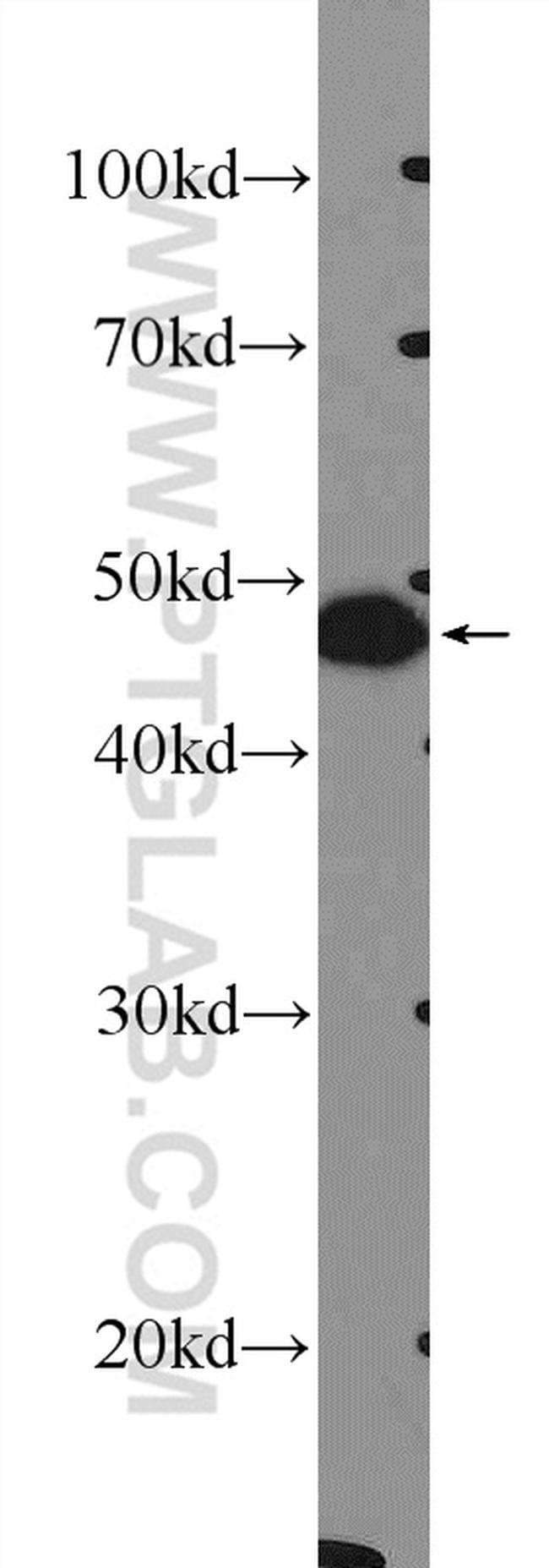 FOXL2 Rabbit anti-Human, Mouse, Rat, Polyclonal, Proteintech 20 μL; Unconjugated Ver productos