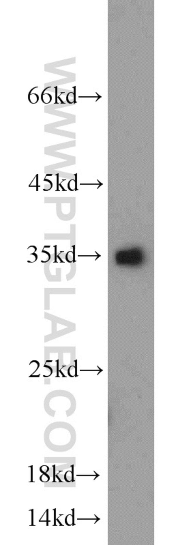 Caspase 3 Rabbit anti-Human, Mouse, Rat, Polyclonal, Proteintech 20 μL; Unconjugated Ver productos