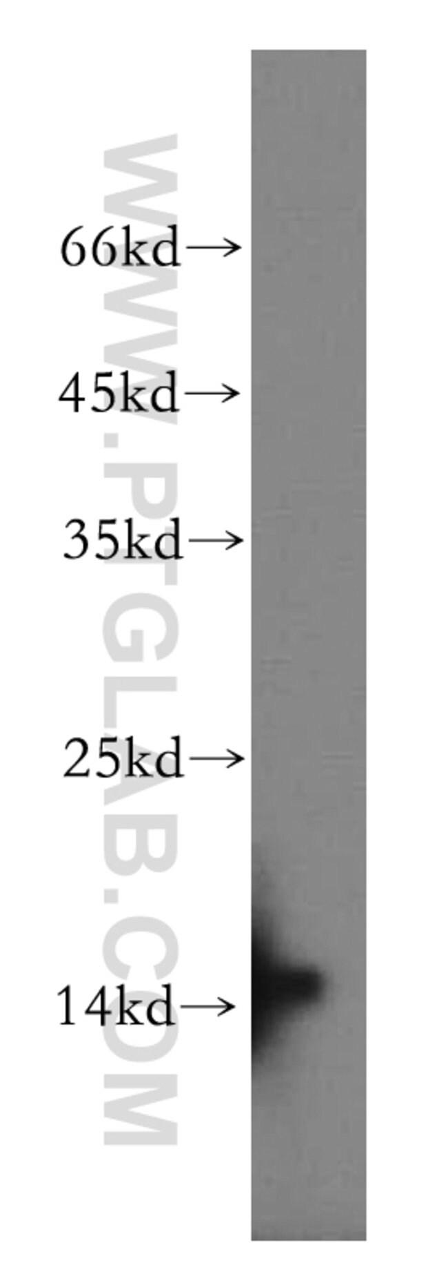 BLOC1S1 Rabbit anti-Human, Mouse, Rat, Polyclonal, Proteintech 20 μL; Unconjugated Ver productos