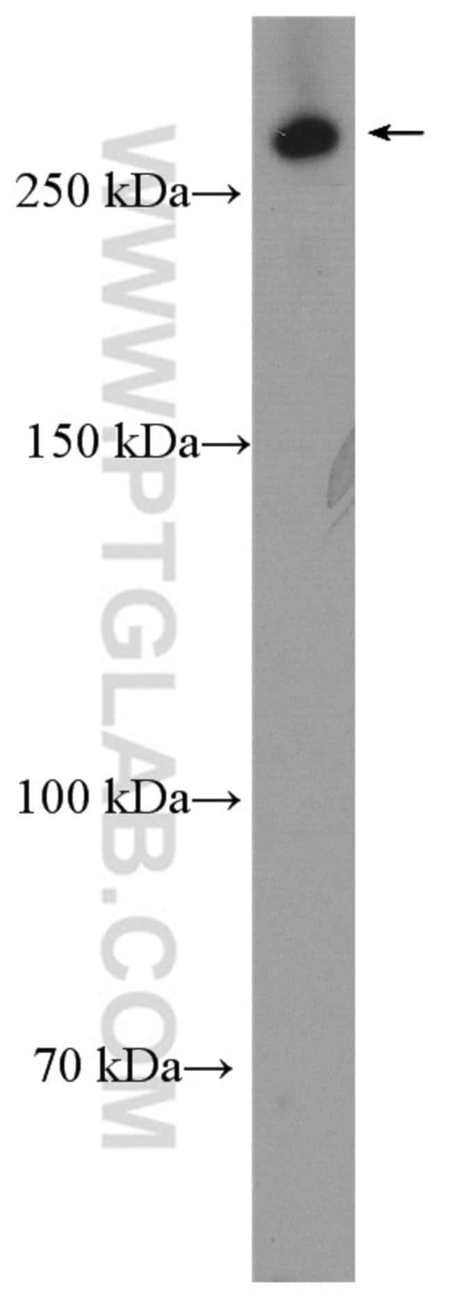 LRP2 Rabbit anti-Human, Polyclonal, Proteintech 20 μL; Unconjugated Ver productos