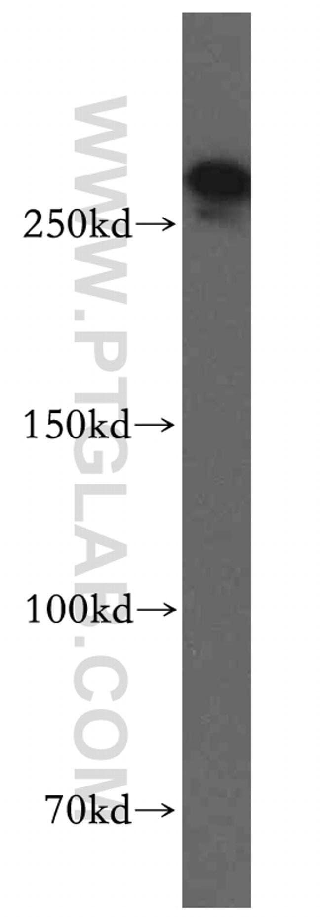 SPTBN1 Rabbit anti-Human, Mouse, Polyclonal, Proteintech 20 μL; Unconjugated Ver productos