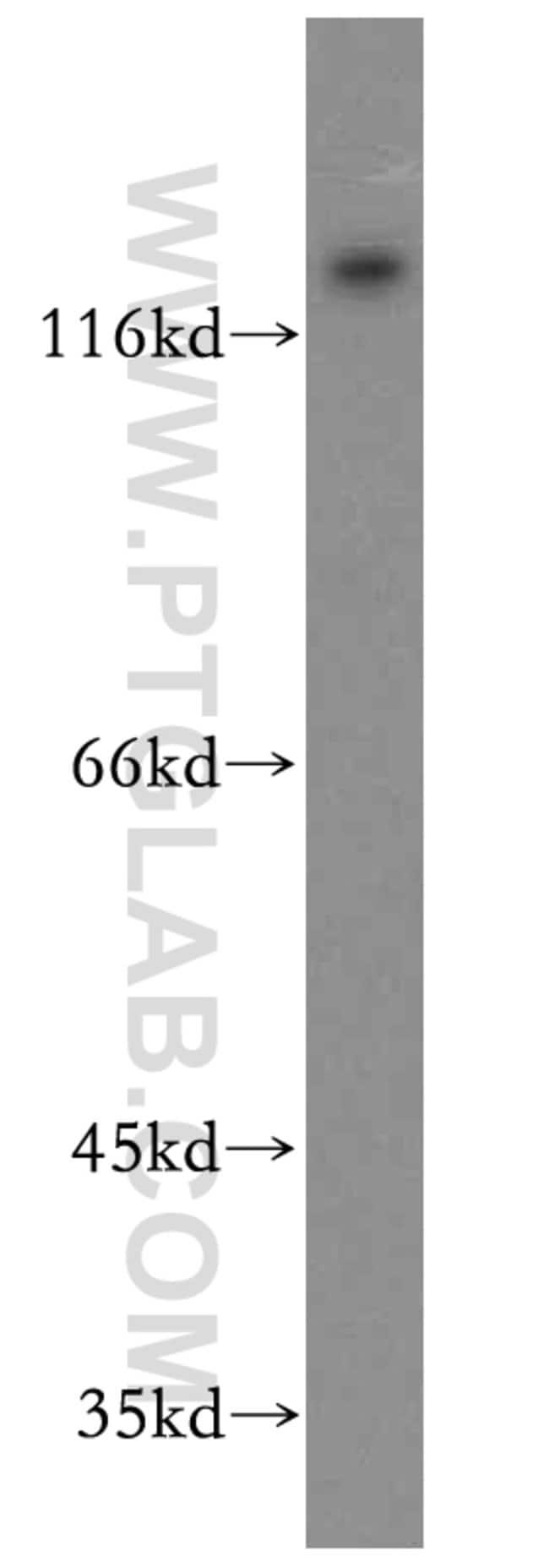 APBA2 Rabbit anti-Human, Mouse, Polyclonal, Proteintech 20 μL; Unconjugated Ver productos