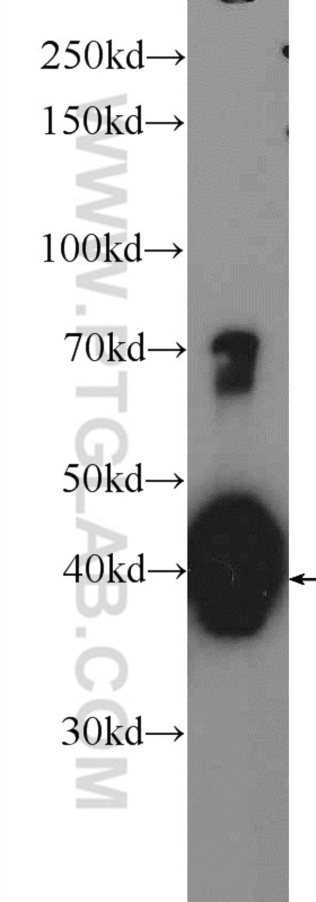 hIST1 Rabbit anti-Human, Mouse, Rat, Polyclonal, Proteintech 20 μL; Unconjugated Ver productos