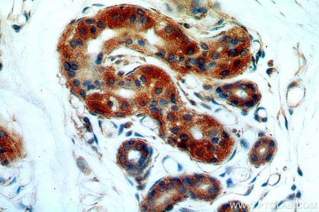 HAUS4 Rabbit anti-Human, Mouse, Rat, Polyclonal, Proteintech 20 μL; Unconjugated Ver productos