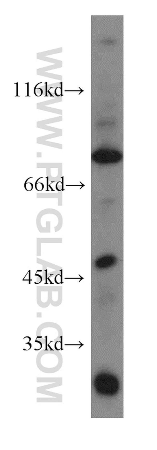 ACAP1 Rabbit anti-Human, Mouse, Rat, Polyclonal, Proteintech 20 μL; Unconjugated Ver productos