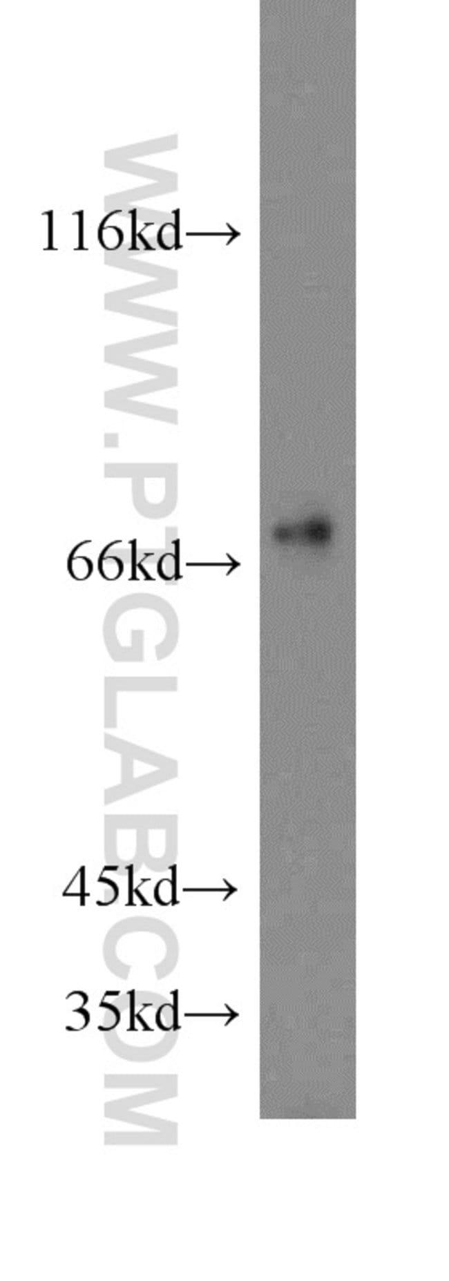 SHP2 Rabbit anti-Human, Mouse, Rat, Polyclonal, Proteintech 20 μL; Unconjugated Ver productos