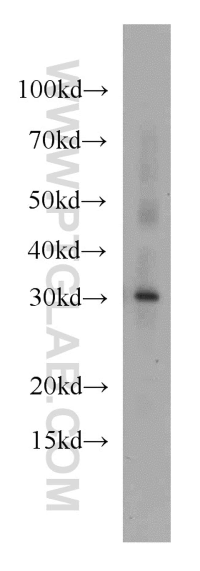 MRTO4 Rabbit anti-Human, Mouse, Rat, Polyclonal, Proteintech 20 μL; Unconjugated Ver productos