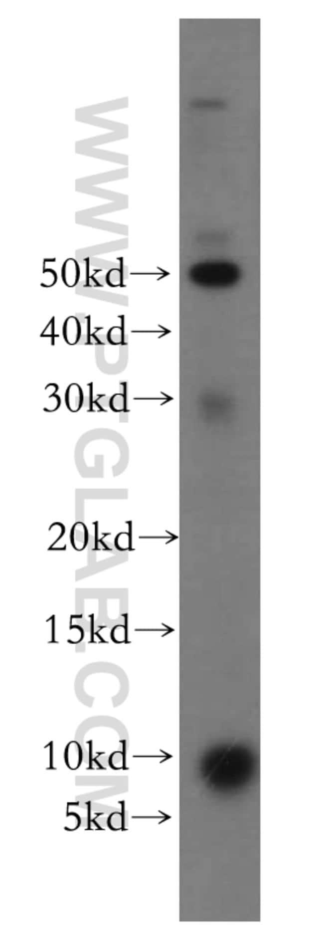 CCDC72 Rabbit anti-Human, Mouse, Rat, Polyclonal, Proteintech 20 μL; Unconjugated Ver productos