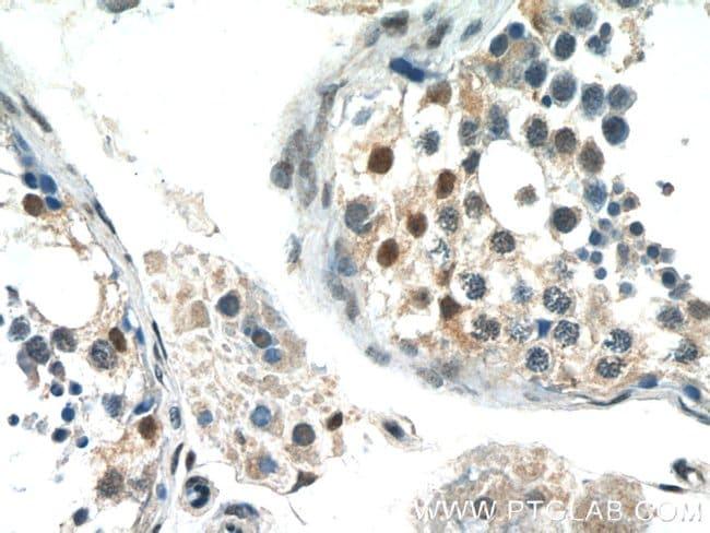FAM164C Rabbit anti-Human, Rat, Polyclonal, Proteintech 150 μL; Unconjugated Ver productos