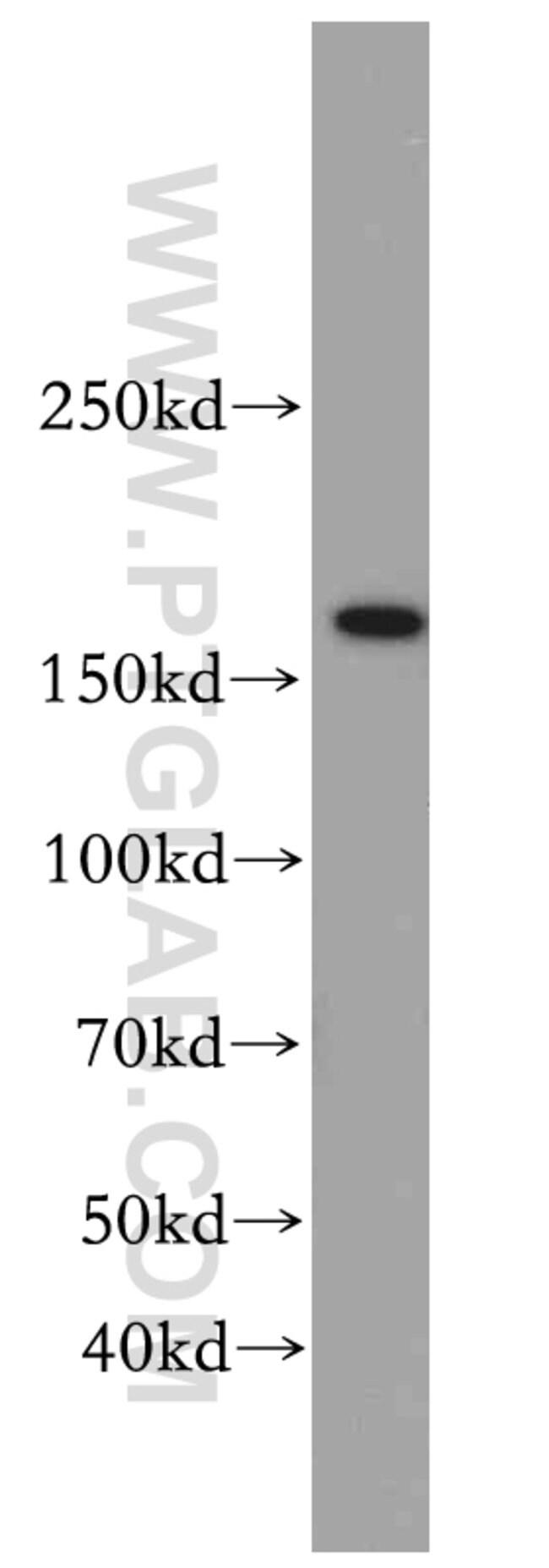 TOP2B Rabbit anti-Human, Mouse, Polyclonal, Proteintech 150 μL; Unconjugated Ver productos