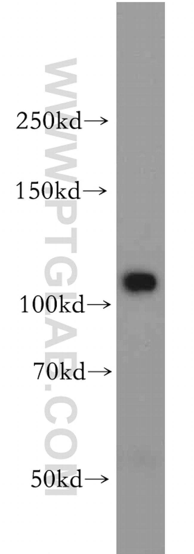 PI3K p110(beta) Rabbit anti-Human, Polyclonal, Proteintech 150 μL; Unconjugated Ver productos
