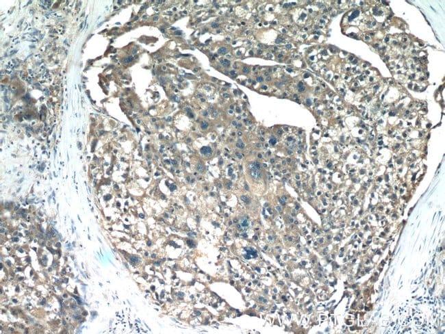 SHH Rabbit anti-Human, Mouse, Rat, Polyclonal, Proteintech 150 μL; Unconjugated Ver productos