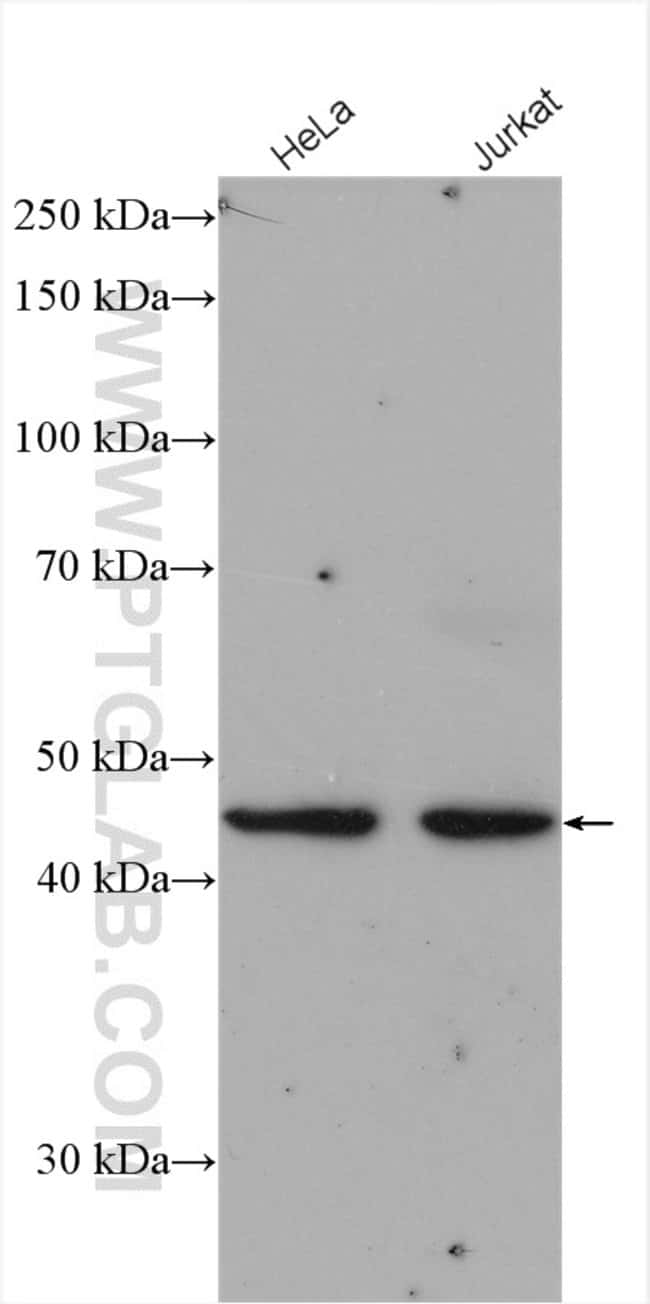 LAX1 Rabbit anti-Human, Mouse, Rat, Polyclonal, Proteintech 150 μL; Unconjugated voir les résultats