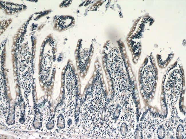 NAGS Rabbit anti-Human, Mouse, Rat, Polyclonal, Proteintech 150 μL; Unconjugated voir les résultats