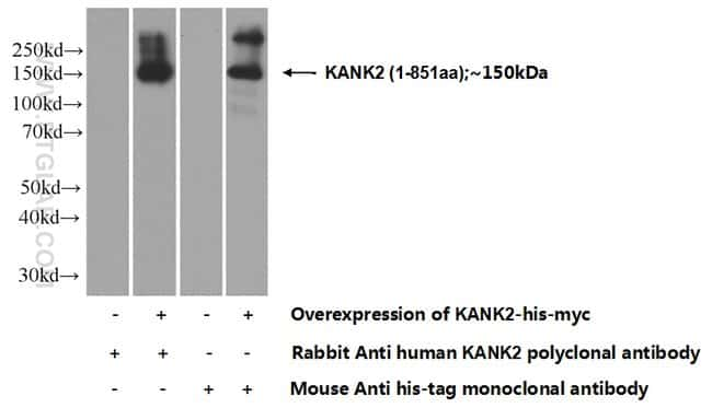 KANK2 Rabbit anti-Human, Mouse, Rat, Polyclonal, Proteintech 150 μL; Unconjugated voir les résultats