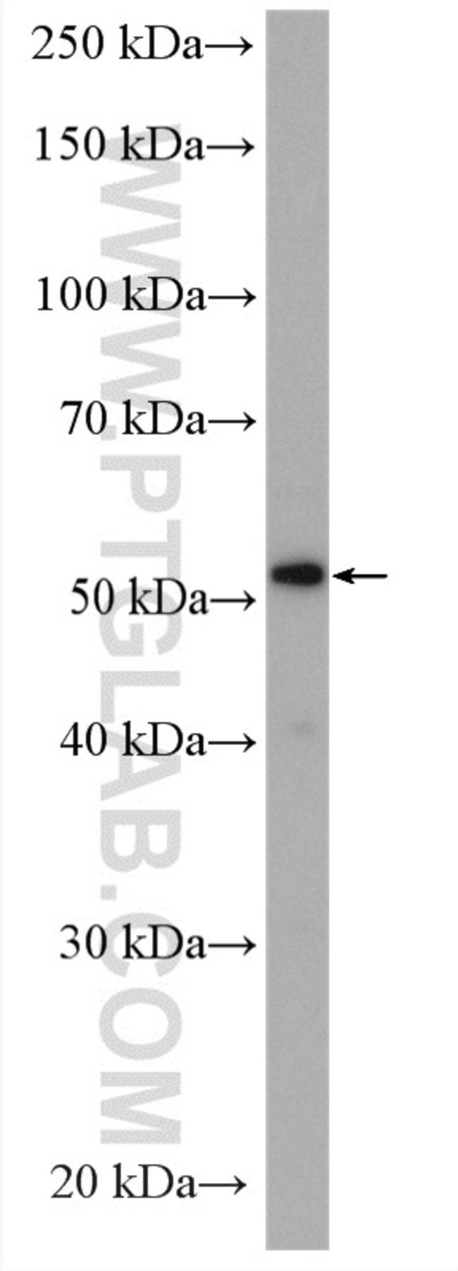 VNN1 Rabbit anti-Human, Mouse, Polyclonal, Proteintech 150 μL; Unconjugated voir les résultats