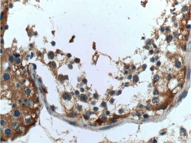 UCN Rabbit anti-Human, Polyclonal, Proteintech 150 μL; Unconjugated voir les résultats