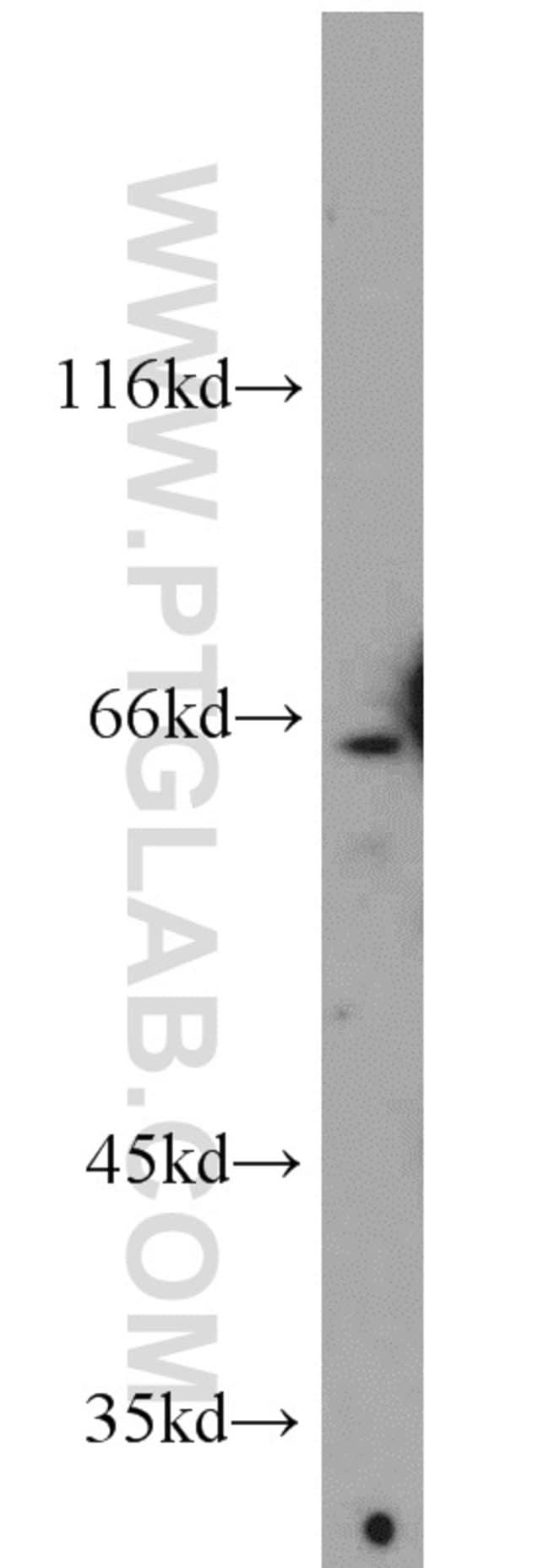 DDX56 Rabbit anti-Human, Mouse, Polyclonal, Proteintech 150 μL; Unconjugated voir les résultats