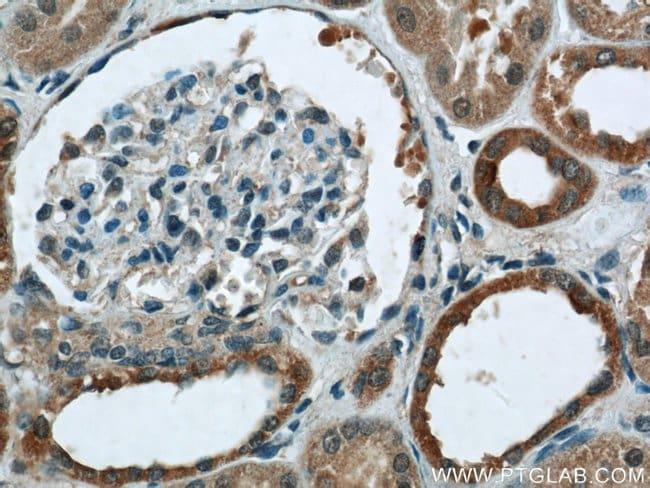 Cytokeratin 7 Rabbit anti-Human, Polyclonal, Proteintech 150 μL; Unconjugated voir les résultats