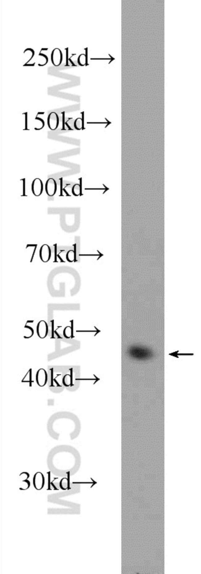 Cytokeratin 17 Rabbit anti-Human, Mouse, Polyclonal, Proteintech 150 μL; Unconjugated voir les résultats