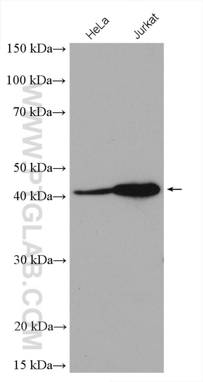 USF1 Rabbit anti-Human, Polyclonal, Proteintech 150 μL; Unconjugated voir les résultats