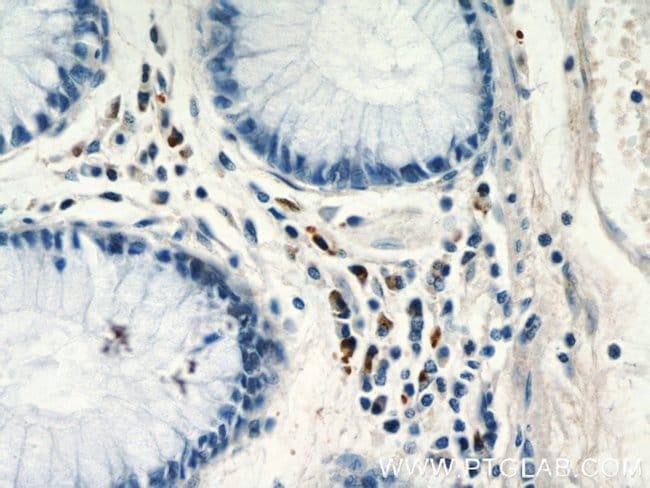 CCL17 Rabbit anti-Human, Polyclonal, Proteintech 150 μL; Unconjugated voir les résultats