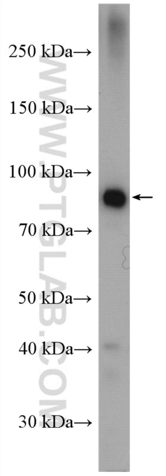 GYS2 Rabbit anti-Human, Mouse, Rat, Polyclonal, Proteintech 150 μL; Unconjugated voir les résultats