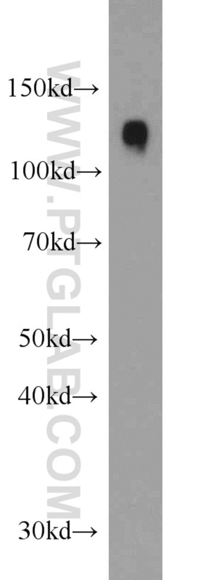 SRGAP2 Rabbit anti-Human, Mouse, Polyclonal, Proteintech 150 μL; Unconjugated voir les résultats