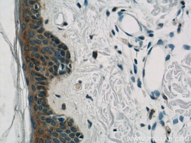 BCR Rabbit anti-Human, Non-human primate, Polyclonal, Proteintech 150 μL; Unconjugated voir les résultats