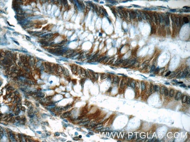 FKBP52 Rabbit anti-Human, Polyclonal, Proteintech 150 μL; Unconjugated voir les résultats