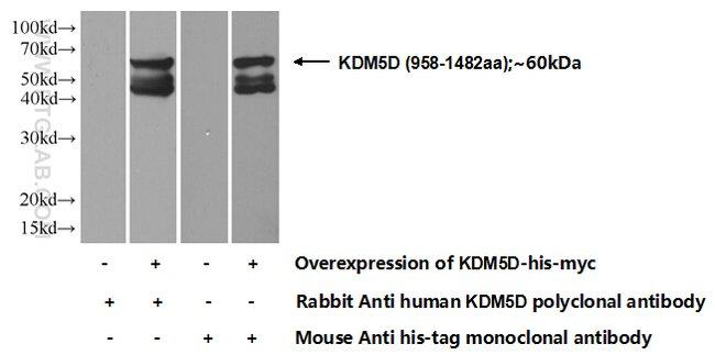 KDM5D Rabbit anti-Human, Polyclonal, Proteintech 20 μL; Unconjugated voir les résultats