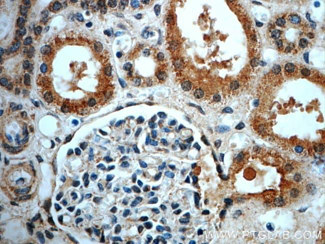LIFR Rabbit anti-Human, Mouse, Polyclonal, Proteintech 20 μL; Unconjugated voir les résultats