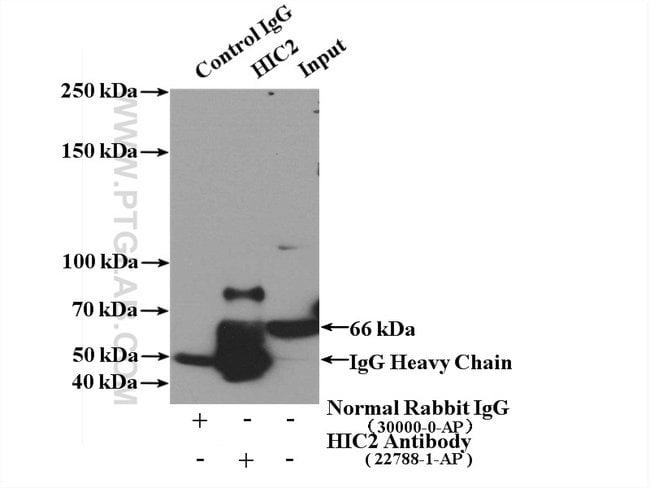 HIC2 Rabbit anti-Human, Polyclonal, Proteintech 20 μL; Unconjugated voir les résultats