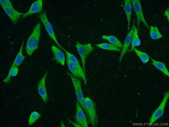 IGF2BP1 Rabbit anti-Human, Mouse, Rat, Polyclonal, Proteintech 20 μL; Unconjugated voir les résultats