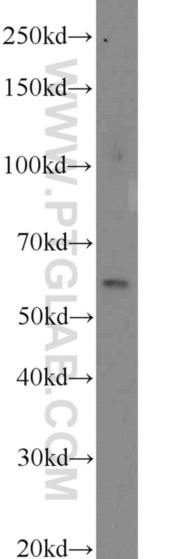 CDKAL1 Rabbit anti-Human, Mouse, Polyclonal, Proteintech 20 μL; Unconjugated voir les résultats