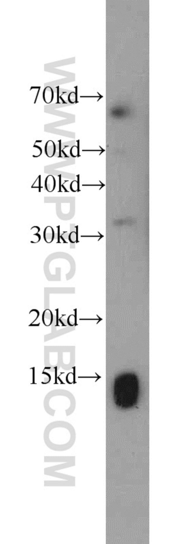 SCP2 Rabbit anti-Human, Mouse, Polyclonal, Proteintech 20 μL; Unconjugated voir les résultats