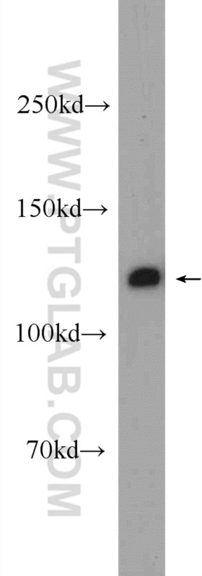 C20orf194 Rabbit anti-Human, Mouse, Rat, Polyclonal, Proteintech 20 μL; Unconjugated voir les résultats