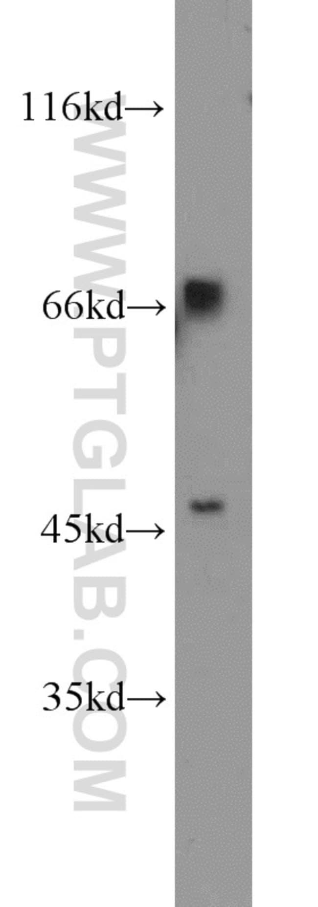 TBX18 Rabbit anti-Human, Mouse, Rat, Polyclonal, Proteintech 20 μL; Unconjugated voir les résultats