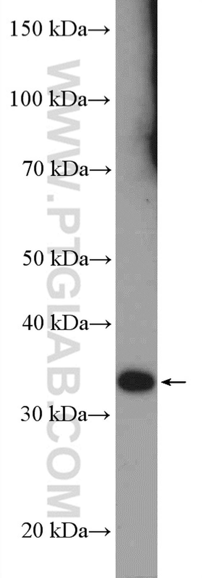 RSPH9 Rabbit anti-Human, Mouse, Rat, Polyclonal, Proteintech 20 μL; Unconjugated voir les résultats