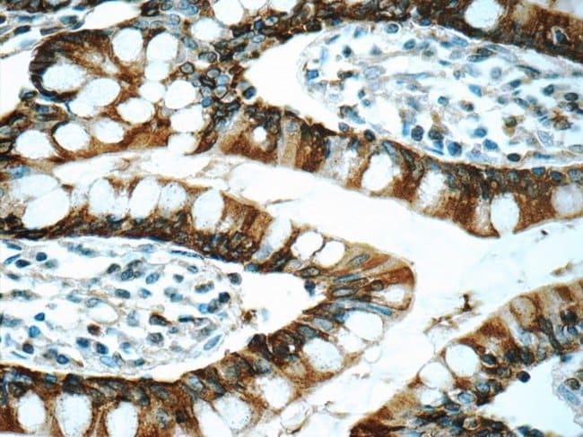 Trefoil factor 3 Rabbit anti-Human, Polyclonal, Proteintech 20 μL; Unconjugated voir les résultats